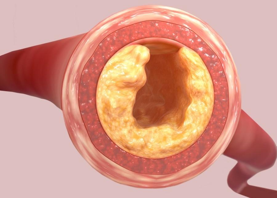 Cholesterol – Is It Such a Villain?