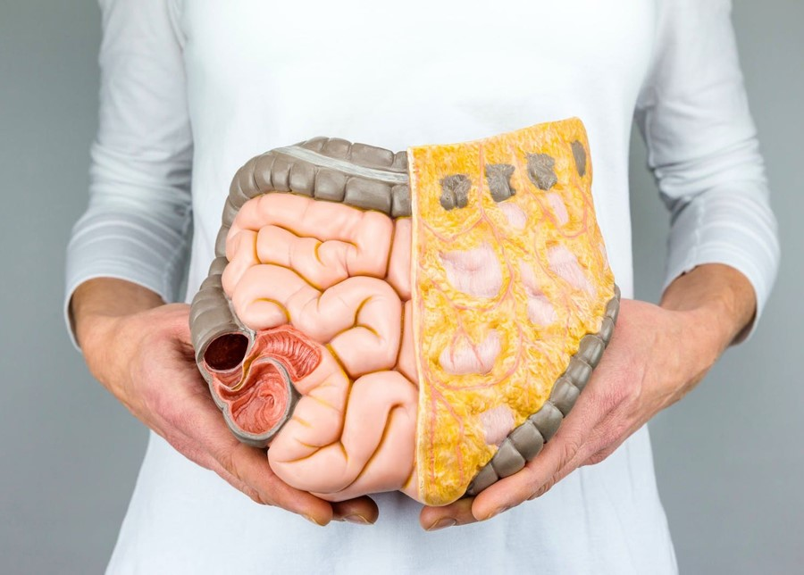 An Unhealthy Gut Increases Risk of Bowel Cancer