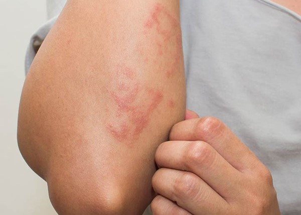 Children Are More Likely To Suffer With Eczema