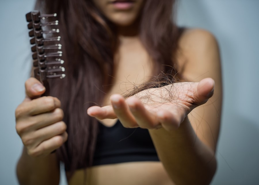 How Can We Prevent Hair Loss?
